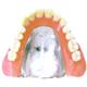コバルトクロム床義歯